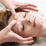 acupuncture-193x193